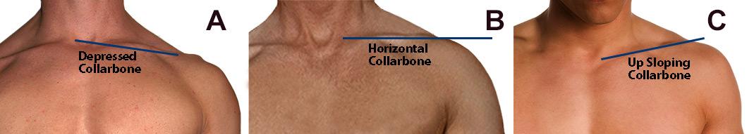 Боль в шее и слабые мышцы трапеций