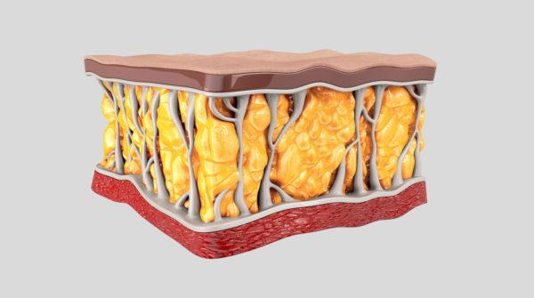 Как избавиться от подкожного жира?