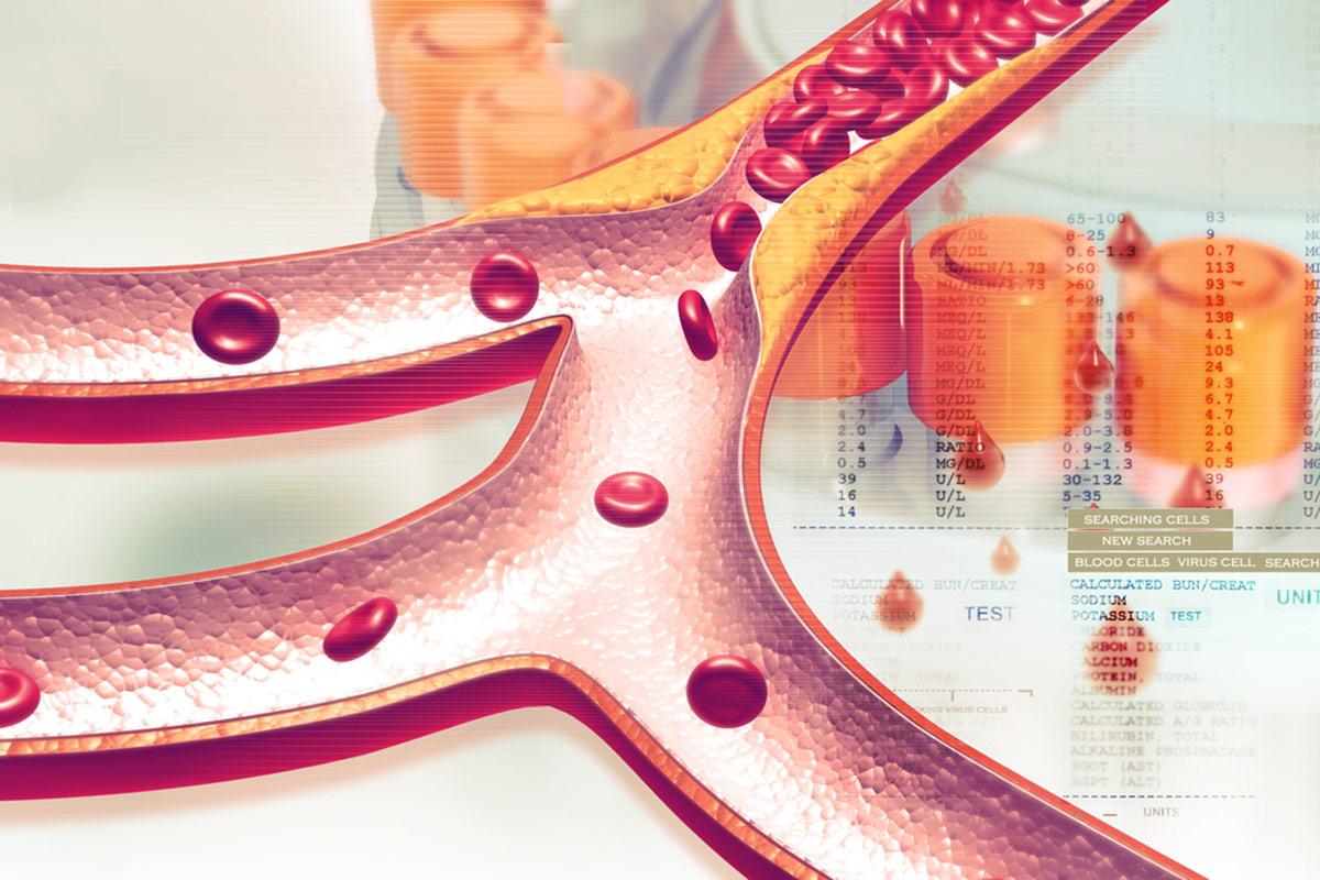 Холестерин — что это такое? От чего повышается холестерин?
